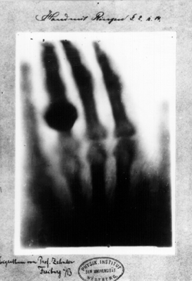 The world's first medical x-ray, taken by Wilhelm Rontgen on December 22, 1895, it's his wife's hand.
