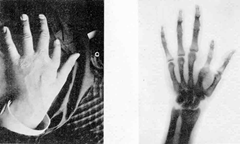 """1896 plaque published in """"Nouvelle Iconographie de la Salpetrière"""", a medical journal. In the left a hand deformity, in the right same hand seen using radiography."""
